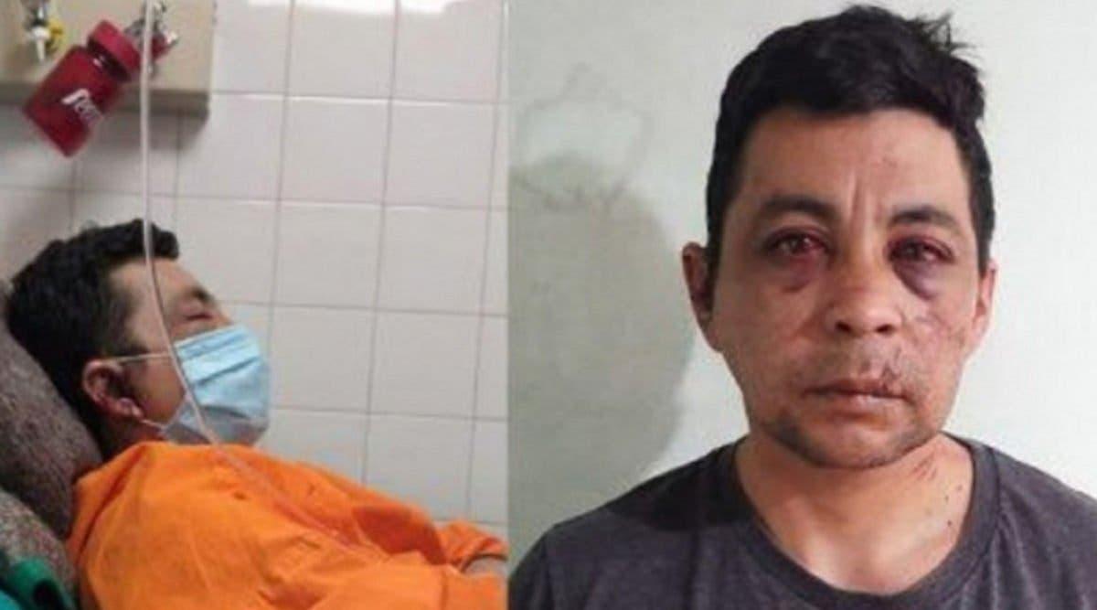 « On m'a battu, on a mis le feu à ma maison car je suis contaminé par le Coronavirus » affirme cet infirmier
