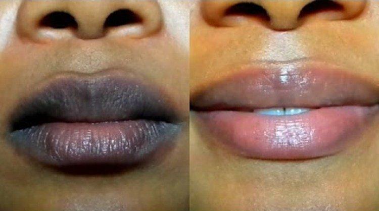 Remède maison pour adoucir et éclaircir les lèvres foncées