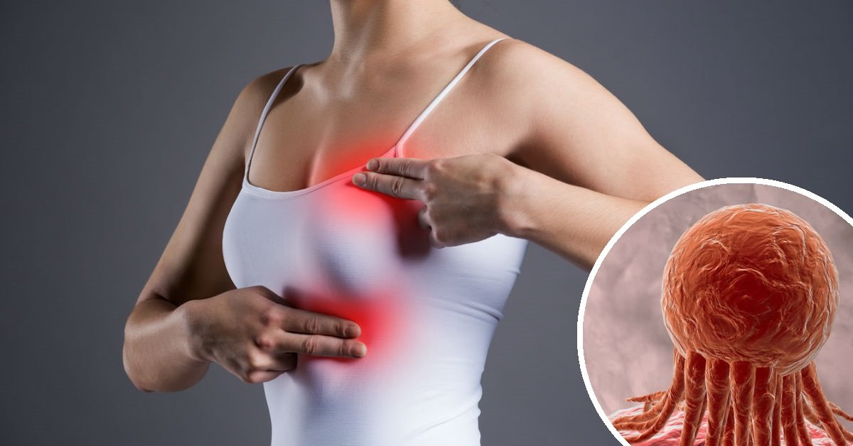 5 signes avant-coureur de cancer du sein, explique un spécialiste