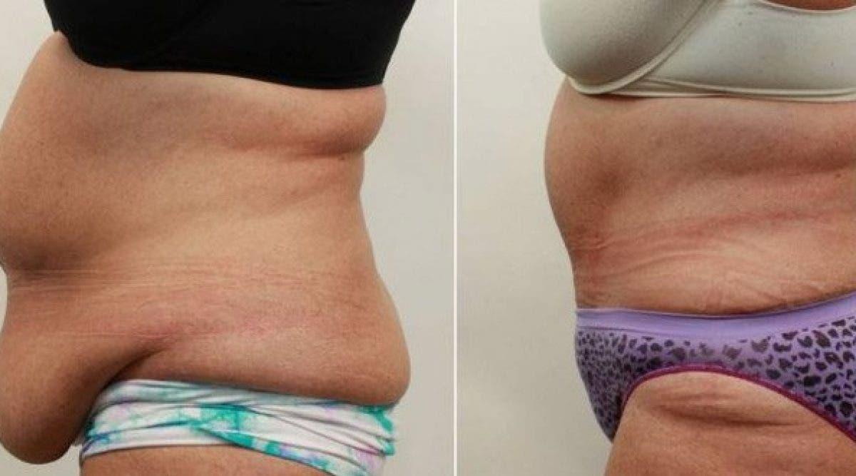 9 remèdes pour réduire la graisse abdominale