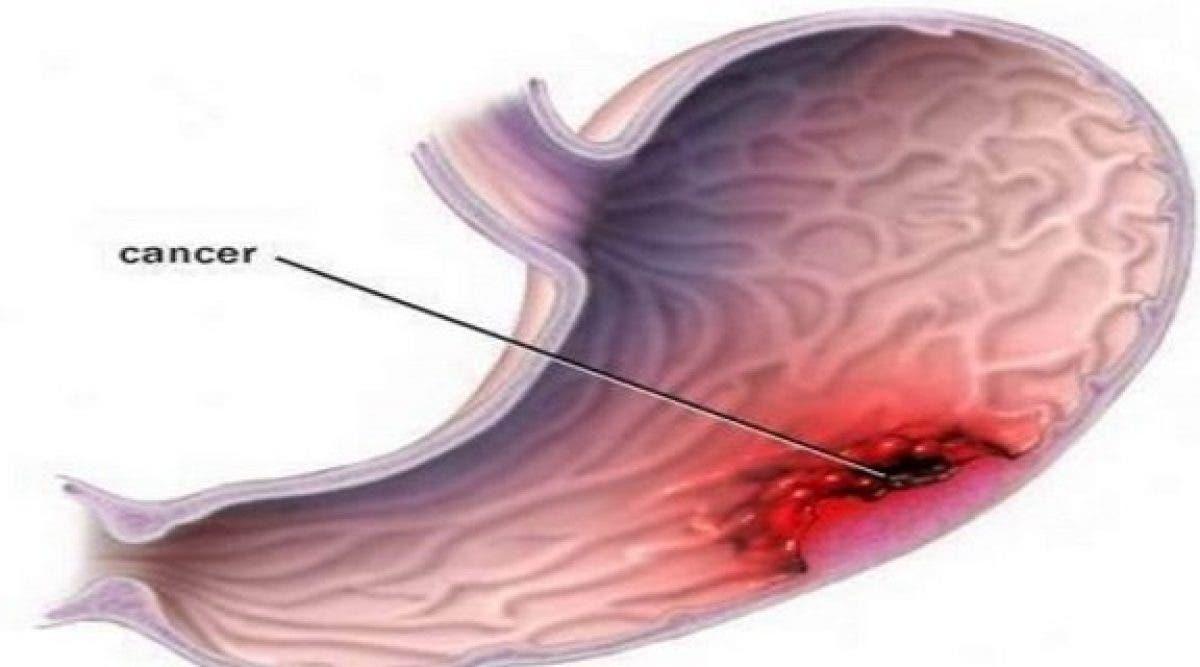 Le cancer de l'estomac est un tueur silencieux : 9 symptômes à repérer