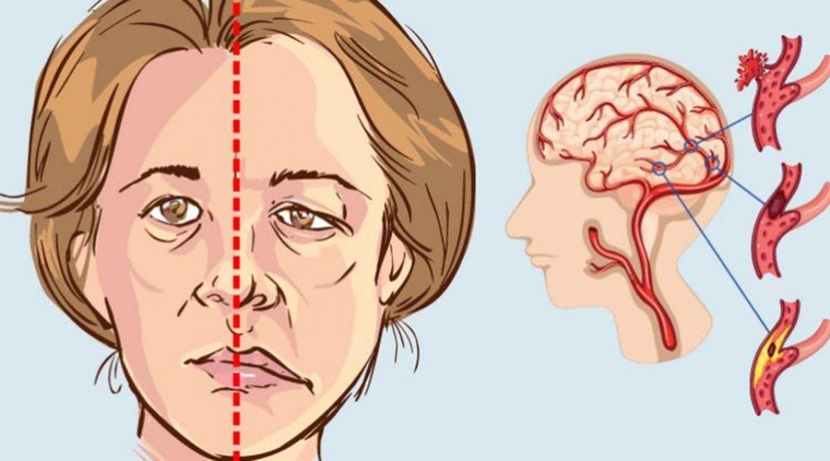 L'AVC est un tueur silencieux : 10 signes à reconnaître