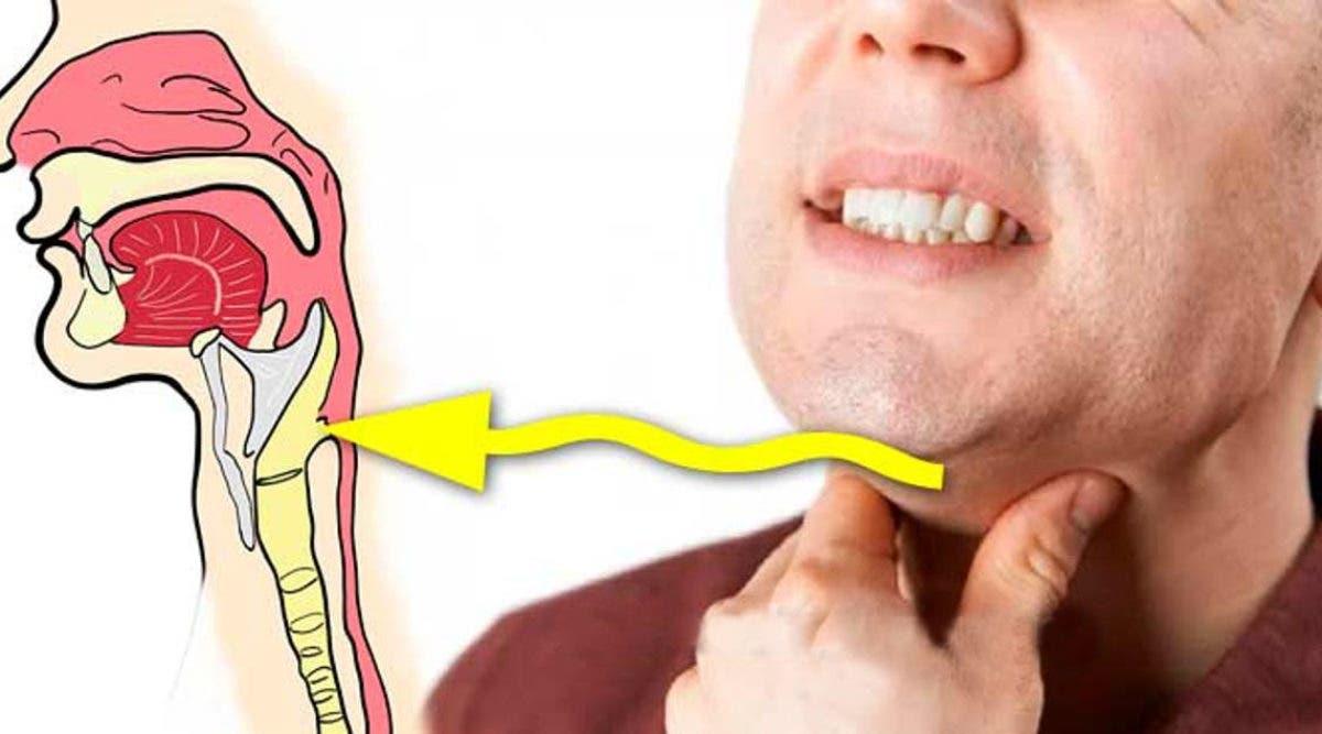 Boule dans la gorge. Les 7 causes principales et comment y remédier