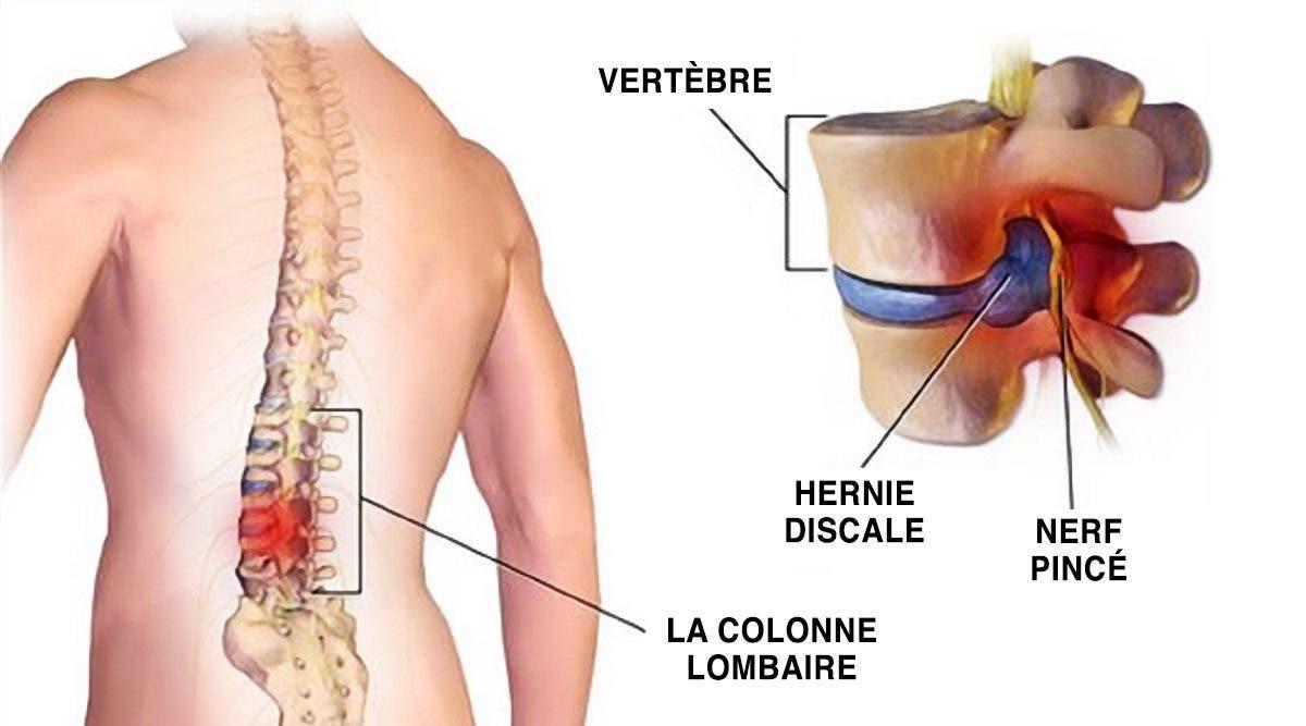 Oui, le secret de la douleur au dos est dans vos pieds : 10 exercices qui vous aident à vous soigner