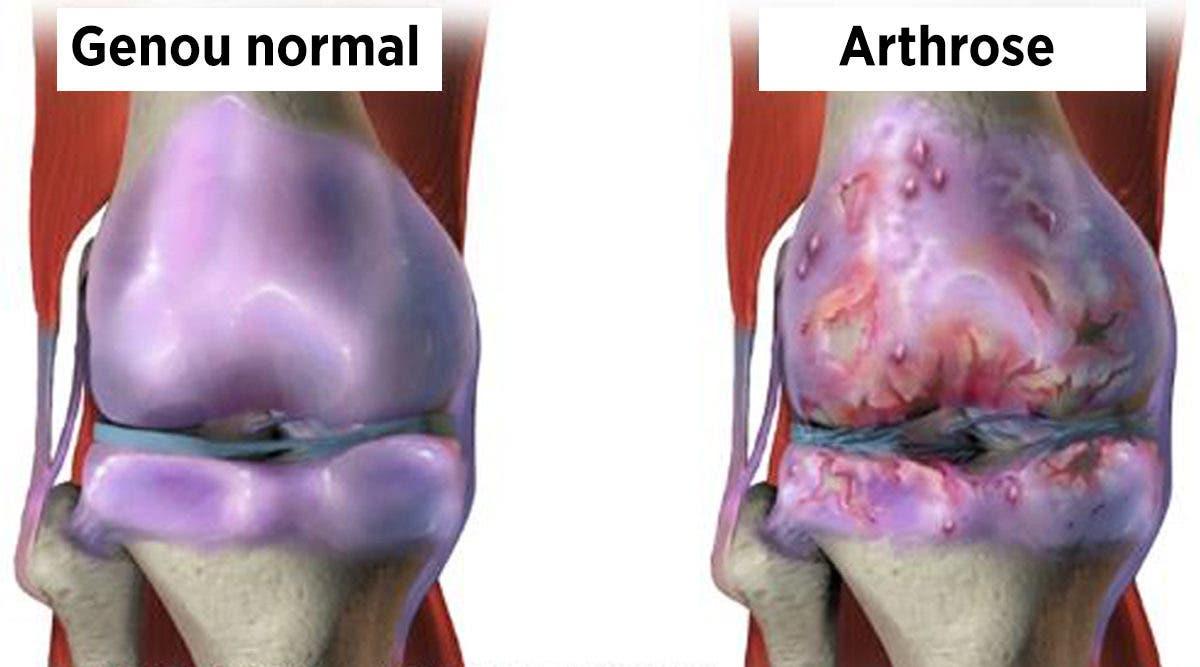 Remèdes naturels scientifiquement prouvés pour la douleur articulaire et l'arthrose du genou