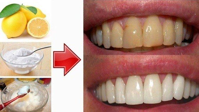 Voici comment blanchir vos dents à la maison