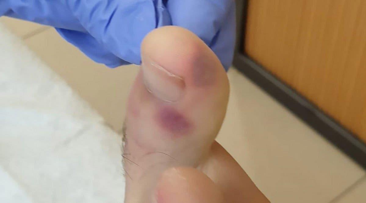 Ces signes du coronavirus à vérifier sur vos pieds (même si vous n'avez pas de symptômes)