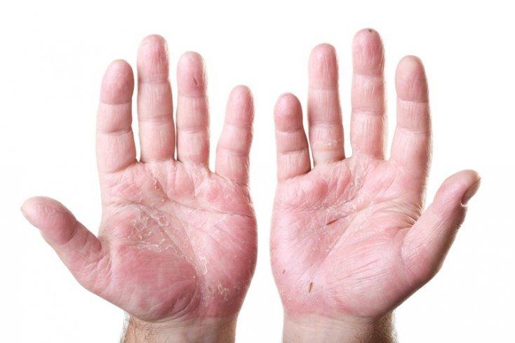 Remèdes pour  l'eczéma, le psoriasis, la dermatite, et les allergies de la peau