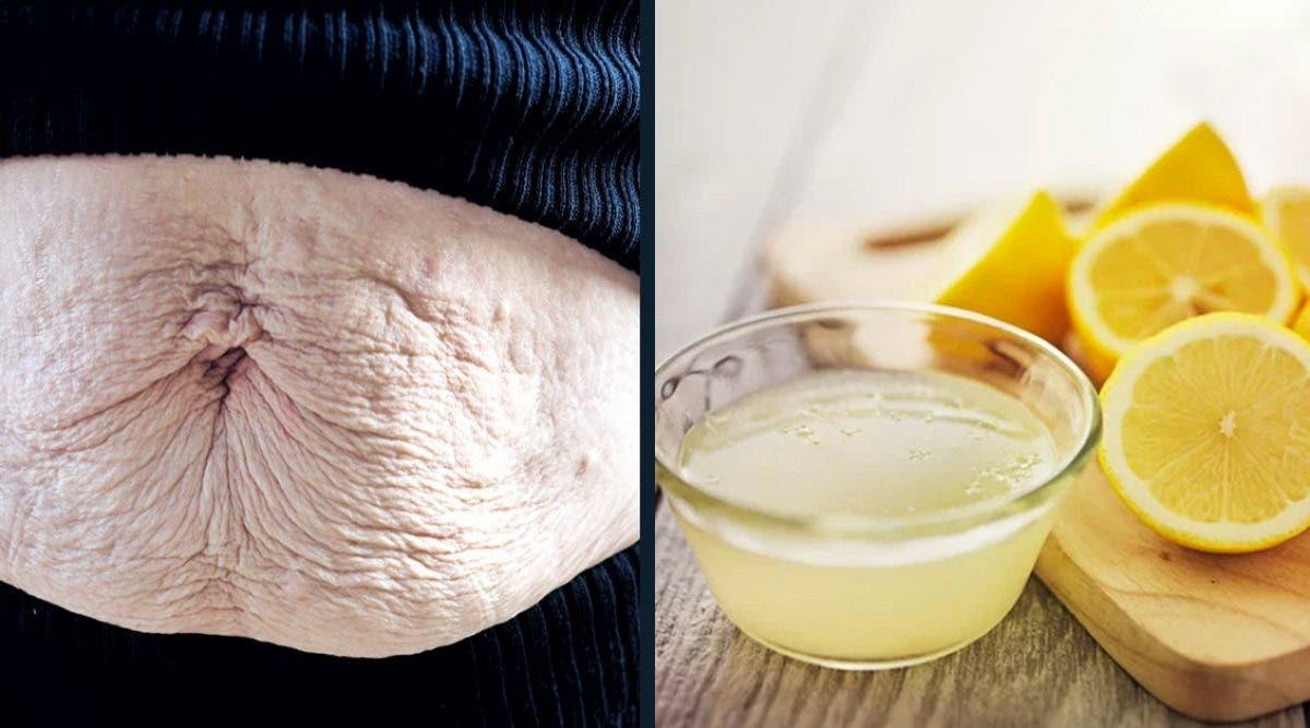 Cette recette au citron vous aidera à éliminer les vergetures sur votre peau ( vidéo )