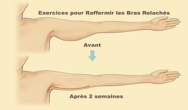5 exercices simples pour raffermir les bras relâchés