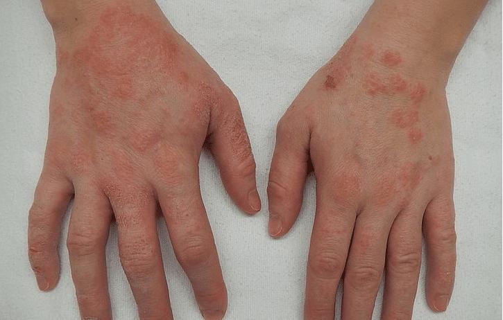 Eczéma : 6 remèdes maison pour soulager la peau et les démangeaisons