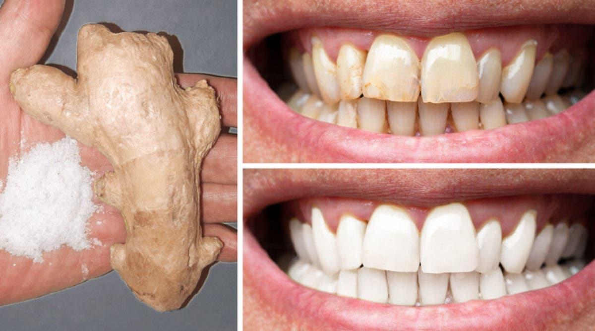 Oui, le gingembre et le sel permettent de blanchir les dents : voici comment les utiliser