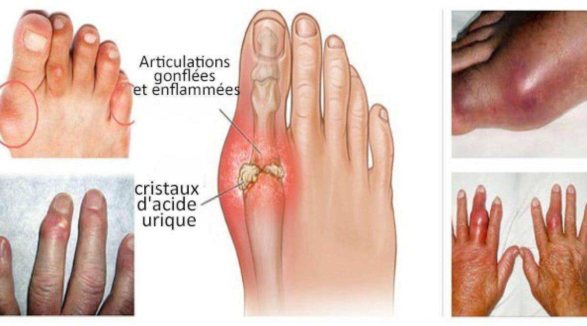 Les meilleurs remèdes naturels pour réduire les douleurs de la goutte