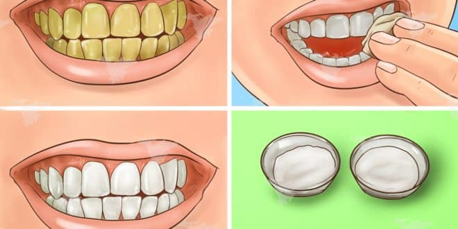 Blanchissez vos dents  et éliminez la couleur jaune