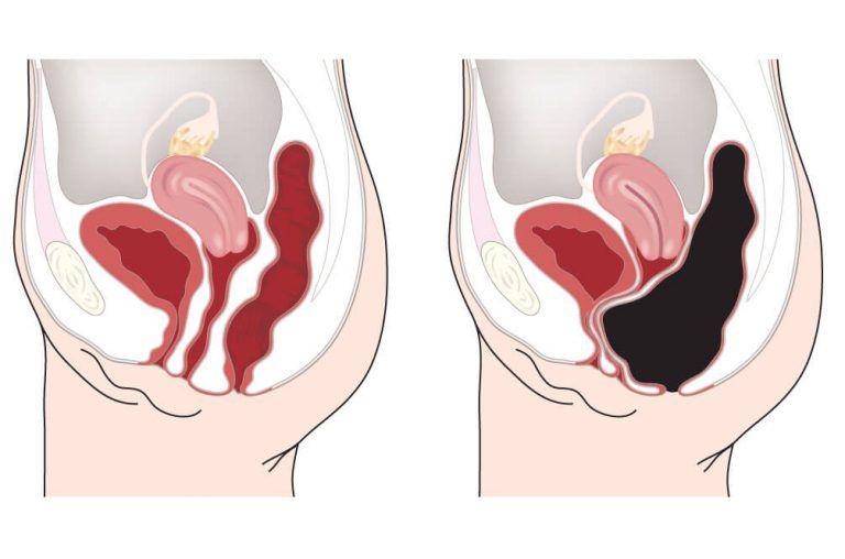 Vous avez environ 20 kg de poison dans votre colon !! Voici COMMENT s'en débarrasser naturellement