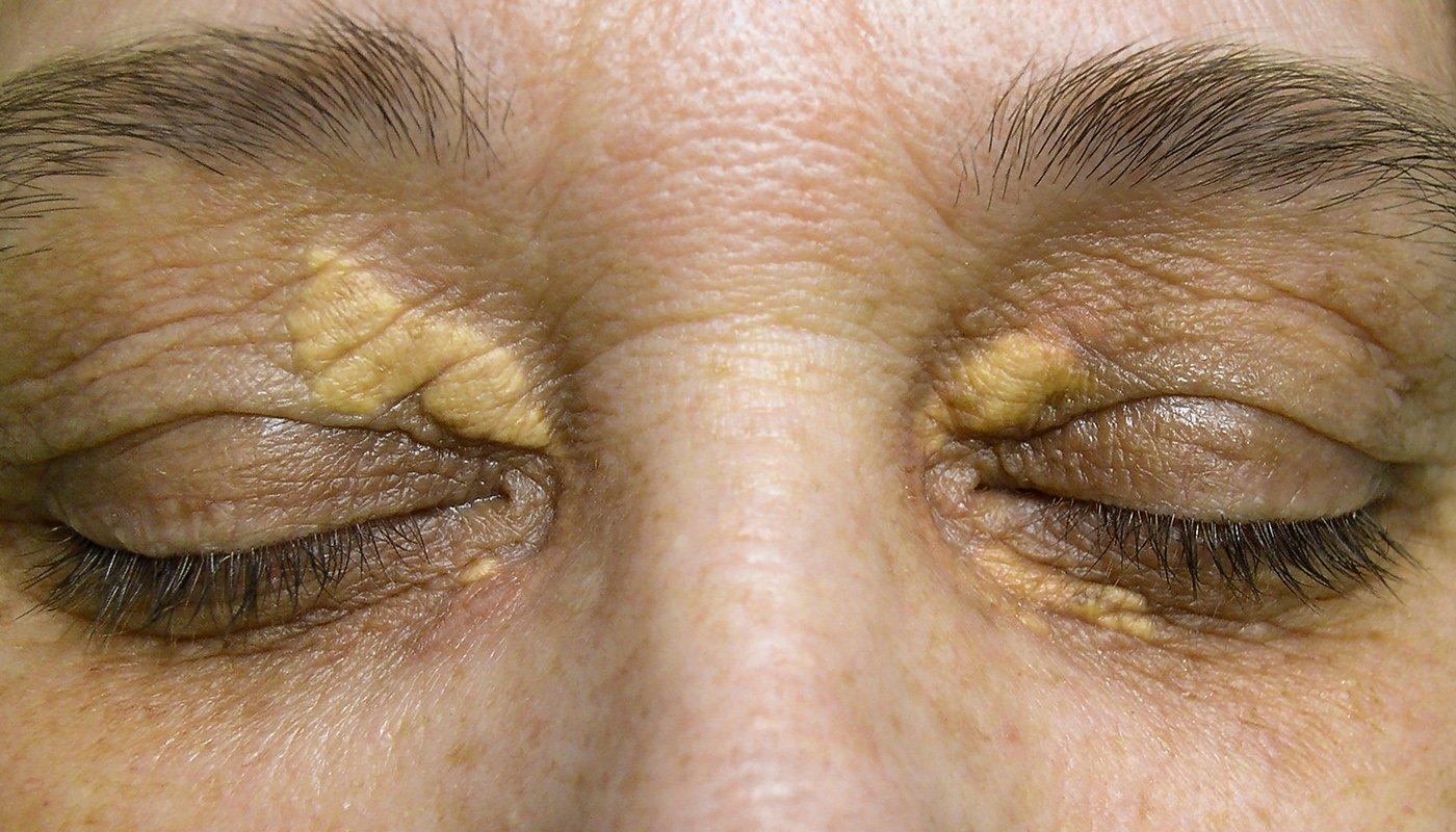 Comment éliminer rapidement les acrochordons de la peau, les verrues, les tâches brunes, les points noirs