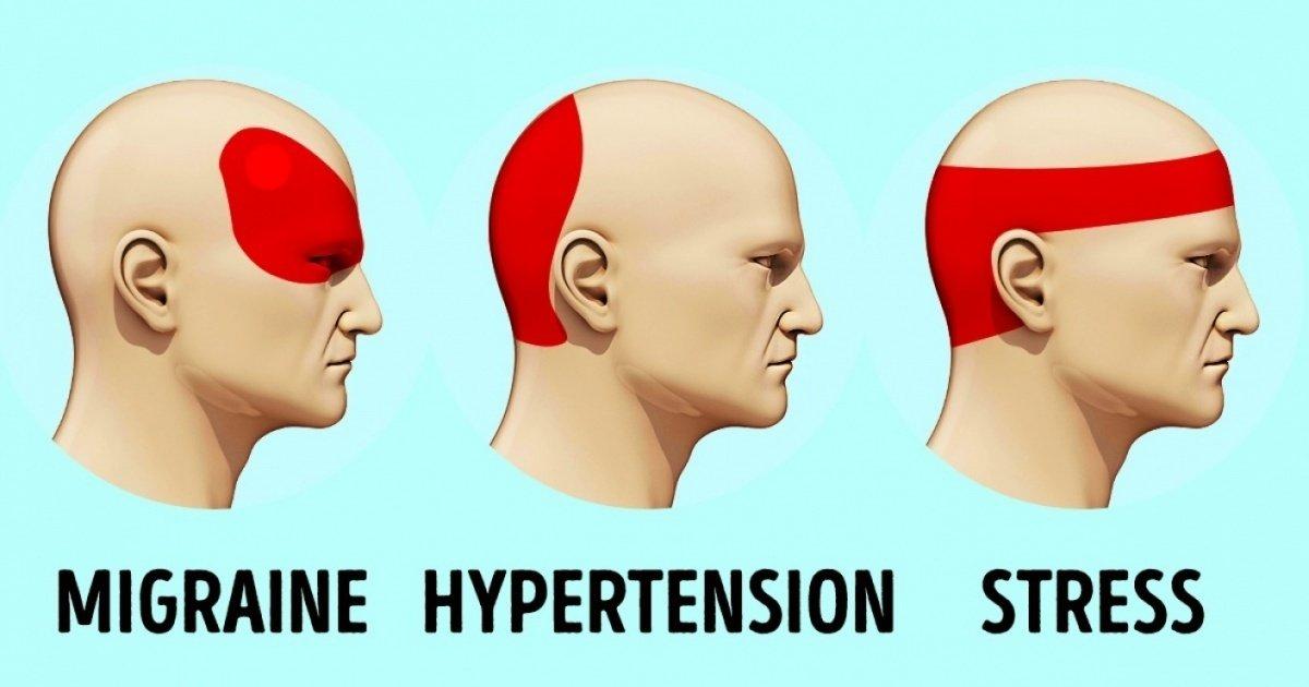Comment se débarrasser d'un mal de tête sans antalgique en 5 minutes