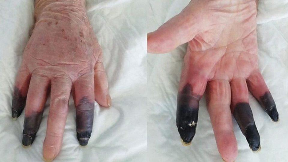 4 nouveaux symptômes du Covid-19 d'après des médecins